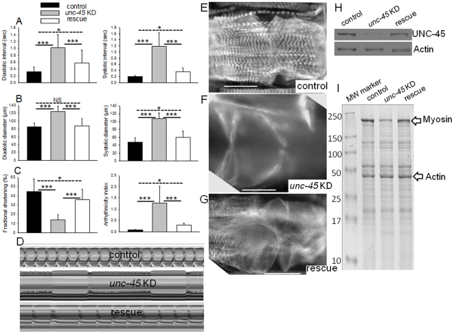 Transgenic over-expression of UNC-45 rescues defects associated with unc-45 KD. ( A ) Assessment of cardiac diastolic and systolic intervals, ( B ) diastolic and systolic diameters, ( C ) % FS and cardiac arrhythmia, in 1 week control, unc-45 KD and rescued old flies. Statistical difference of unc-45 KD from control and rescued as well as between KD and rescued are represented as mean ± SD; where *** = p