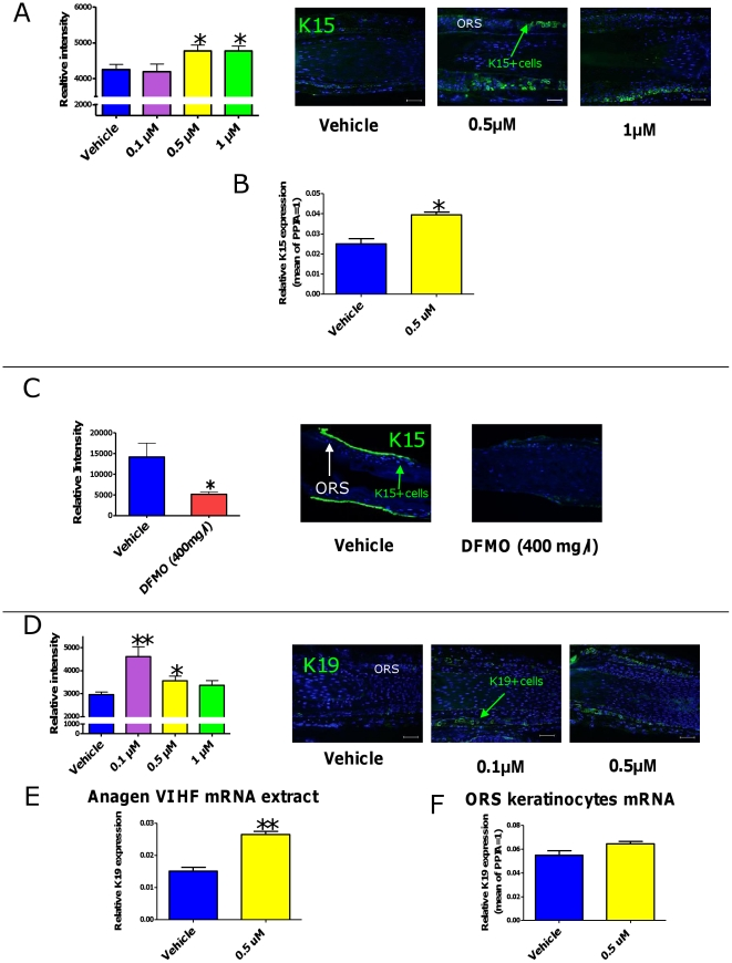 Spermidine up-regulates expression of the epithelial stem cell-associated keratins K15 and K19. A . Spermidine treatment for 6d increased K15-like immunoreactivity in the 0.5 µM and 1 µM doses, as assessed by quantitative immunoreactivity. n = 10–15 HFs/group; cumulative results of two different experiments. B. Spermidine significantly upregulated K15 mRNA expression in cultured ORS keratinocytes after 48 h of treatment. Results represent triplicate determinations of samples. Total RNA was pooled from 20 HFs. C. DFMO (400 mg/l) significantly decreased K15-like immunoreactivity after 6d. n = 6–8 HFs/group . D. Spermidine treatment for 6d increased K19-like immunoreactivity in the 0.1 µM and 0.5 µM doses, as assessed by quantitative immunoreactivity. n = 30–36 HFs/group; cumulative results of two different experiments. E. By Q-PCR, spermidine treatment for 48 h significantly increased the K19 transcript steady-state levels in human anagen HF mRNA extracts. F. Treatment of ORS keratinocytes for 48 h showed a tendency of K19 mRNA upregulation, but these results were not statistically significant. Results represent triplicate determinations of samples. Total RNA was pooled from 20 HFs. Scale bars, 50 µm. Columns represent means±SEM; * P