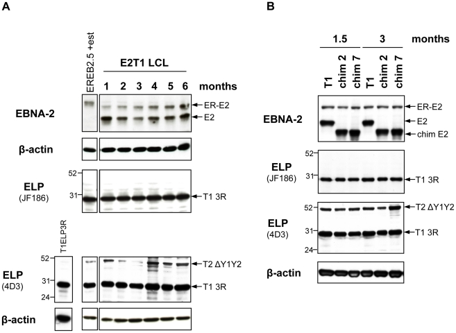 Characterization of oestrogen-independent LCLs established from EREB2.5 cells expressing chimaeras 2 and 7. EREB2.5 cells transfected with OriP-p294 plasmids coding for type 1 EBNA-2 ( A ) or chimaeras 2 and 7 ( B ) and grown in the absence of oestrogen gave rise to continuously proliferating LCLs. Protein samples were harvested from these LCLs at each month after transfection over a period of 6 months ( A ) or after 1.5 and 3 months ( B ) and analyzed by western blotting. The anti-EBNA-2 antibody (PE2), detected the transfected type 1 (E2) and chimaeric (chim E2) EBNA-2 proteins as well as the endogenous ER-EBNA-2 (ER-E2). EBNA-LP immunoblotting was performed with the antibodies JF186 (type 1-specific) and 4D3 (recognizes both types). At any time-point analyzed, both antibodies detected a type 1 3-repeat EBNA-LP species (T1 3R), expressed from the endogenous p554-4 plasmid, indicating that the plasmid was not lost from the cells. The number of repeats was judged by comparison to 293 cells transfected with a type 1 3-repeat EBNA-LP-expressing vector (T1ELP3R). A type 2 Y1Y2-truncated isoform of around 52 kDa (T2 ΔY1Y2), expressed by the resident P3HR1 genome, was also detected by the 4D3 antibody. Numbers alongside the EBNA-LP immunoblot panel represent protein molecular weight (in kDa). β-actin immunoblots ensure equal loading of the proteins.