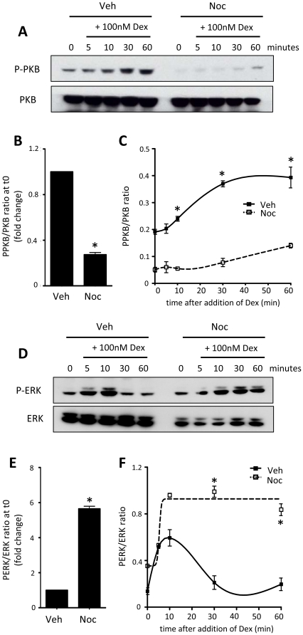 GR regulation of kinases is dependent on cell cycle phase. A549 (A–C) or HeLa (D–F) cells were treated with vehicle or nocodazole for 16 hours, washed and released into mitosis in the presence of 100 nM dex for up to 60 minutes. Cells were lysed and immunoblotted for phospho-PKB and PKB (A), or phospho-ERK and ERK (D). Immunolabelling was quantified by densitometry using ImageJ, where both cell cycle effects (B, E) and Gc-dependent effects (C, F) on kinase activity are depicted. * indicates p