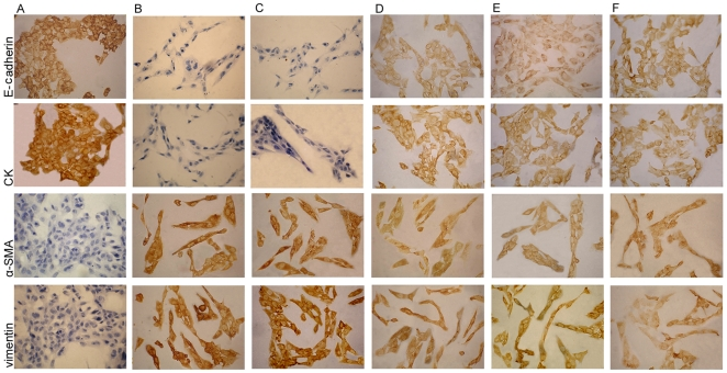 Expression of E-cadherin, CK, <t>α-SMA,</t> vimentin in HK-2 cells by immunochemistry. (A–C)The HK-2 cells under 30 mM glucose(B) or 30 mM glucose+cont siRNA(C) showed a loss of CK and E-cadherin and an increase of α-SMA and vimentin expression compared to that of the cells under 5.5 mM glucose condition(A).(D–F)These changes were prevented by exposed to 30 mM glucose+p38siRNA for 24 h(D) or 48 h(E) or+AP-1 inhibitor(F).