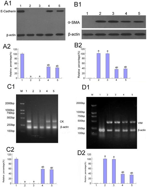 Expression of E-cadherin, CK, α-SMA, vimentin in HK-2 cells by Western blot and RT-PCR analysis. (A–B)E-cadherin expression(A1,A2) and α-SMA(B1,B2) were analyzed by Western blot of the HK-2 cells cultured in 5.5 mM glucose (lane 1), 30 mM glucose (lane 2), 30 mM glucose+Cont siRNA(lane 3), 30 mM glucose+p38 siRNA for 24 h(lane 4), 30 mM glucose+p38 siRNA for 48 h(lane 5).(C–D)mRNA of CK (C1,C2) and vimentin(D1,D2) were analyzed by RT-PCR of the HK-2 cells cultured in 5.5 mM glucose (lane 1), 30 mM glucose (lane 2), 30 mM glucose+Cont siRNA(lane 3), 30 mM glucose+p38 siRNA for 24 h(lane 4), 30 mM glucose+p38 siRNA for 48 h(lane 5).Values represent the mean ± SD, a P