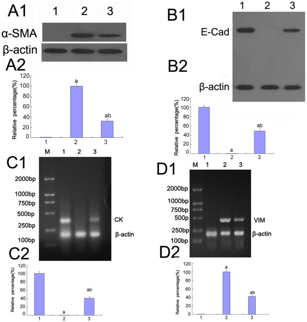 Expression of E-cadherin, CK, α-SMA, vimentin in HK-2 cells by Western blot and RT-PCR analysis. (A–B)α-SMA(A) and E-cadherin(B) were detected by Western blot of the HK-2 cells incubated in 5.5 mM glucose (lane 1), 30 mM glucose(lane 2), 30 mM glucose+AP-1 inhibitor(lane 3).(C–D)mRNA of CK(C) and vimentin(D) was measured by RT-PCR of the HK-2 cells incubated in 5.5 mM glucose (lane 1), 30 mM glucose(lane 2), 30 mM glucose+AP-1 inhibitor(lane 3). Values represent the mean ± SD. a P