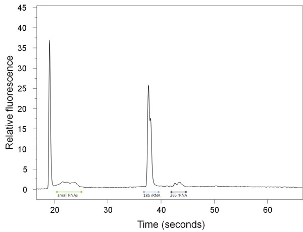 1 Gyrodactylus salaris individual . Electropherogram (Experion) of totalRNA extracted from 1 Gyrodactylus salaris individual using the Phenol-free Total RNA Purification kit from Amresco (AMR). 1% of the extraction was loaded on an Experion RNA HighSens Chip. In Gyrodactylus salaris the 28S RNA is probably autocatalytically degraded as described previously for insects [ 22 , 23 ]