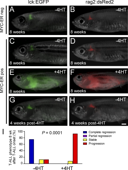 Conditional T-ALL development in rag2:MYC-ER transgenic zebrafish. (A and B) Thymic fluorescence in control MYC-ER–negative lck-EGFP transgenic (A) and rag2:dsRed2 transgenic (B) zebrafish raised in the absence of 4HT. (C and D) Thymic fluorescence in the absence of 4HT treatment in rag2:MYC-ER transgenic zebrafish that also expressed lck-EGFP (C) or rag2:dsRed2 (D). For A–D, one representative zebrafish is shown from a minimum of eight fish raised in each condition. (E and F) Fully penetrant T-ALL in rag2:MYC-ER transgenic zebrafish raised in 50 µg/liter (129 nM) 4HT. A representative triple-transgenic rag2:MYC-ER; lck:EGFP; rag2:dsRed2 zebrafish is shown at the time of disseminated T-ALL development, imaged in both green and red fluorescent channels. (G and H) Thymic fluorescence in the rag2:MYC-ER transgenic zebrafish from E and F, shown 4 wk after 4HT removal. In all triple-transgenic zebrafish in which regression occurred ( n = 6 of 8), T-ALL regression occurred simultaneously in both green and red fluorescent channels, with no evidence of residual EGFP-positive dsRed2-negative mature T cells, indicating that differentiation was not the primary mechanism of T-ALL regression. Bar, 1 mm. (I) After T-ALL development, zebrafish were either removed from 4HT to down-regulate the MYC transgene (−4HT) or kept in 4HT (+4HT), and tumor phenotype was assessed 8 wk after 4HT removal. Zebrafish that became moribund with leukemia before the 8-wk time point were euthanized and classified into the progression category. Number of fish analyzed per condition: −4HT, n = 8; +4HT, n = 13.