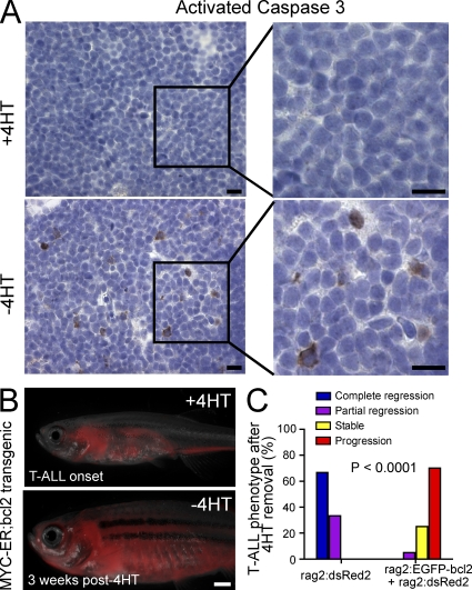 T-ALL regression after MYC down-regulation occurs via mitochondrial apoptosis. (A) Immunohistochemical staining for the apoptotic marker activated caspase 3 was performed in rag2:MYC-ER transgenic zebrafish with T-ALL in the presence of 4HT (+4HT) and 4 d after 4HT removal (−4HT). Number of fish analyzed = 4 per condition. Bars, 10 µm. (B) One representative rag2:MYC-ER; rag2:EGFP-bcl2; rag2:dsRed2 triple-transgenic zebrafish is shown at the time of T-ALL onset and 3 wk after removal from 4HT. Bar, 1 mm. (C) Quantitation of T-ALL phenotypes 8 wk after MYC-ER inactivation, comparing rag2:EGFP-bcl2 transgenic zebrafish versus rag2:dsRed2 controls. Number of fish analyzed per condition: rag2:MYC-ER;rag2:dsRed2 , n = 12; rag2:MYC-ER; rag2:dsRed2; rag2:EGFP-bcl2 , n = 20.