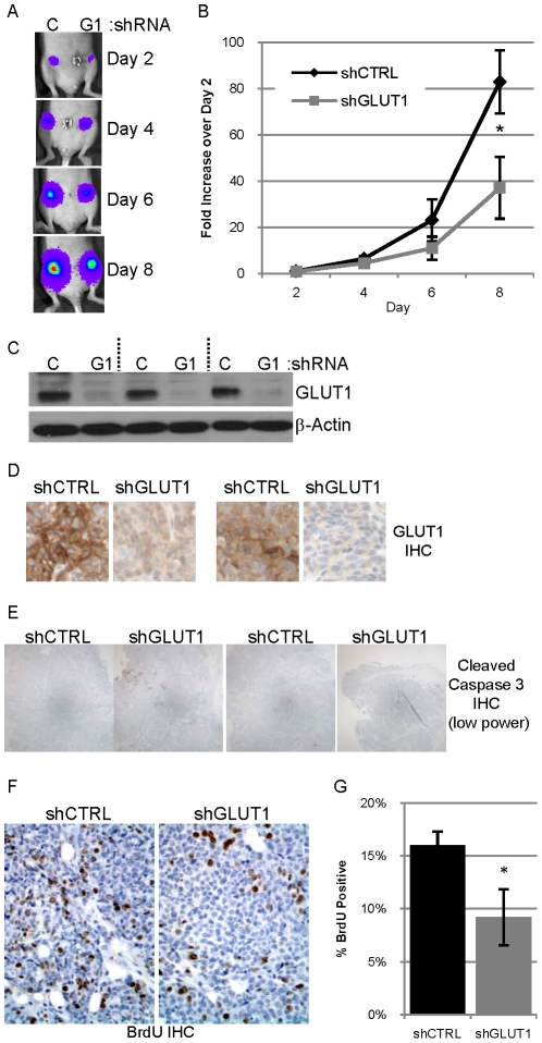 Reduced expression of GLUT1 in 78617GL cells decreases tumor growth. A. 0.5 million 78617GL cells expressing control shRNA (C) or GLUT1 shRNA (G1) were injected into contralateral #4 mammary fat pads of athymic nude mice. Bioluminescence from the labeled tumor cells was detected on days 2, 4, 6 and 8 after implantation. The abdominal region heat map depicting luciferase activity of a representative mouse is pictured. B. The average bioluminescence on days 2, 4, 6 and 8 normalized to the day 2 bioluminescence +/− SEM for five mice is presented with the black diamonds representing shCTRL tumors and grey squares representing shGLUT1 tumors. C. Expression of GLUT1 and β-actin in lysates of three tumor pairs evaluated by immunoblot analysis. D. GLUT1 expression evaluated by IHC (with hematoxylin counterstain) in two tumor pairs. E. Representative low power photomicrographs of two pairs of tumor sections immunostained for cleaved caspase 3. F–G. Representative high power photomicrographs of a tumor pair immunostained for BrdU with hematoxylin counterstain ( F ) which is quantified ( G ).