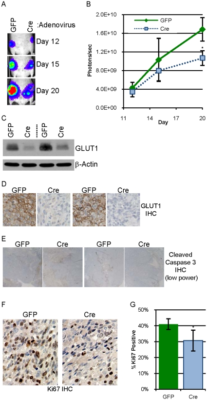 "Elimination of GLUT1 expression in G1fPt cells decreases tumor growth. A. 0.5 million G1fPt cells infected two weeks prior with adenovirus expressing GFP or Cre recombinase were injected into contralateral #4 mammary fat pads of athymic nude mice. Bioluminescence from the labeled tumor cells was detected on days 12, 15 and 20 after implantation. The abdominal region heat map depicting luciferase activity of a representative mouse is pictured. B. The average bioluminescence on days 12, 15 and 20 +/− SEM for eight mice is presented with green diamonds representing ""GFP"" tumors and light blue squares representing ""Cre"" tumors. C. Expression of GLUT1 and β-actin in lysates of two tumor pairs evaluated by immunoblot analysis. D. GLUT1 expression evaluated by IHC (with hematoxylin counterstain) in two tumor pairs. E. Representative low power photomicrographs of two pairs of tumor sections immunostained for cleaved caspase 3. F–G. Representative high power photomicrographs of a tumor pair immunostained for Ki67 with hematoxylin counterstain ( F ) which is quantified ( G )."