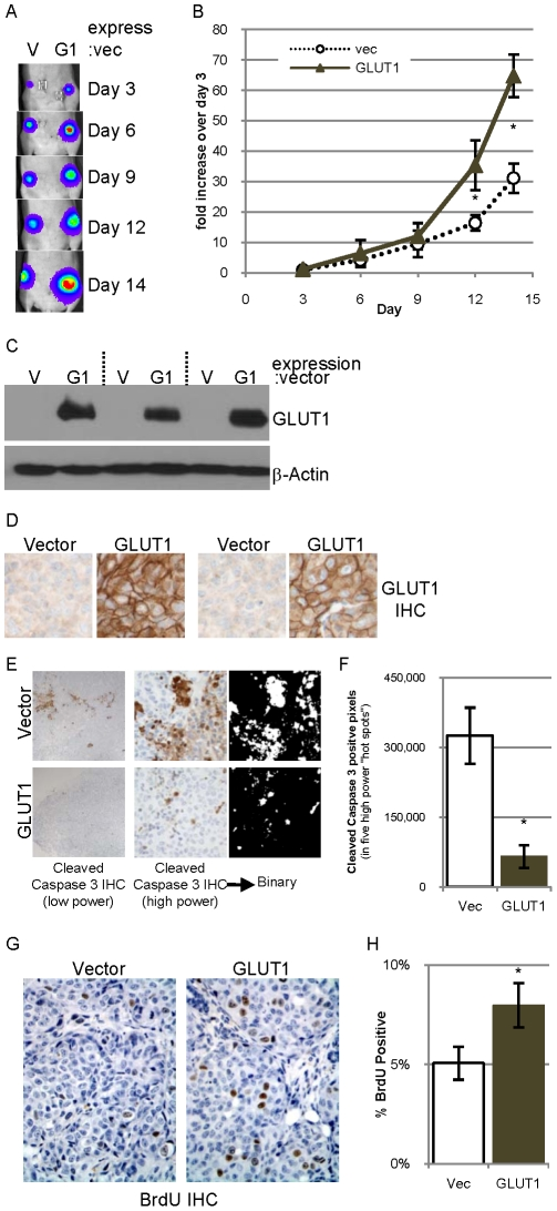 "Overexpression of GLUT1 in 85815GL cells accelerates tumor formation. A. 0.4 million 85815GL cells expressing control vector (V) or GLUT1 (G1) were injected into contralateral #4 mammary fat pads of athymic nude mice. Bioluminescence from the labeled tumor cells was detected on days 3, 6, 9, 12 and 14 after implantation. B. The bioluminescence on days 3, 6, 9, 12 and 14 normalized to the day 3 value was averaged for all five mice and is presented +/−SEM. C. GLUT1 and β-actin expression evaluated in lysates of three tumor pairs by immunoblot analysis. D. GLUT1 expression evaluated by IHC in two tumor pairs. E. Low power photomicrographs of a pair of tumor sections derived from a vector control tumor (top) and a tumor overexpressing GLUT1 (bottom) immunostained for cleaved caspase 3 (left). High power photomicrographs of a pair of tumor sections immunostained for cleaved caspase 3 (middle), which are converted to binary pictures (right). F. Quantification of the number of cleaved caspase 3 positive pixels in five high power field ""hot spots"" in four tumors of each group. G–H. Representative high power photomicrographs of tumor sections immunostained for BrdU with hematoxylin counterstain ( G ) which is quantified ( H )."