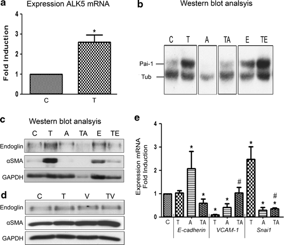 Western blot and qRT-PCR analysis. Gene expression of cEPDCs (control; C) and cEPDCs treated with 1 ng/ml TGFβ3 (T) showed that the expression of ALK5 was increased by TGFβ ( a ). Western blot analysis of protein samples isolated from cEPDCs stimulated in the presence or absence of 1 ng/ml TGFβ3 and α-Endoglin probed for Pai-1 ( b ). As a loading control, α/β-tubulin was used ( b ). Western blot analysis of αSMA and endoglin in epicardial cells stimulated by sVCAM-1 (100 ng/ml) and α-Endoglin (0.5 μg/ml) independent or simultaneously with TGFβ3 (1 ng/ml) ( c , d ). GAPDH was used as a loading control in this experiment ( c , d ). Gene expression of cEPDCs and cEPDCs treated with TGFβ3, iALK5 and both simultaneously. Treatment with TGFβ showed significant decrease in epithelial markers and increase in EMT marker Snai1 , which is dependent on ALK5 kinase activity ( e ). * P