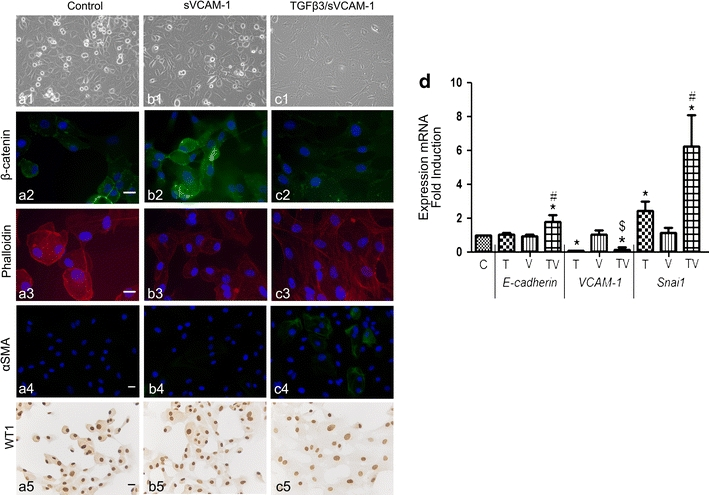 sVCAM-1 inhibits cell shape changes in human adult epicardial cells treated with TGFβ3. Unstimulated cells ( a ) and stimulated with sVCAM-1 (100 ng/ml) ( b ) and simultaneously with TGFβ3 (1 ng/ml) and sVCAM-1 (100 ng/ml) ( c ) are stained for β-catenin ( a2 – c2 ) and with phalloidin to visualize filamentous actin ( a3 – c3 ). Onset of differentiation into smooth muscle cells was visualized by staining for αSMA ( a4 – c4 ) and the state of differentiation was visualized by WT1 ( a5 – c5 ). The process of EMT was confirmed by qRT-PCR ( d ) analysis for epithelial and EMT markers. ×100 in a1 – c1 . Scale bar 20 μm. * P