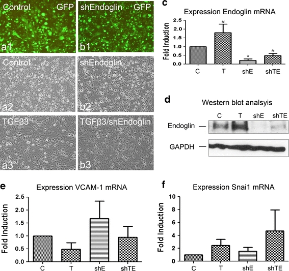 Knockdown of endoglin expression cannot block the process of TGFβ-stimulated EMT. Transduction of epicardial cells with lentivirus expression shRNAs for control GFP virus (Control) and human endoglin (shEndoglin) was visualized by the expression of GFP ( a1 , b1 ) and did not affect the cell morphology ( a2 , b2 ). Addition of TGFβ caused morphological changes in both shEndoglin-transduced cEPDCs and control ( a3 , b3 ). qRT-PCR ( c ) and Western blot ( d ) analysis showed reduction of endogenous endoglin expression after transduction ( c , d ). Addition of TGFβ caused increase in endoglin expression in both transduced and control epicardial cells. Analysis of epithelial marker VCAM - 1 ( e ) and EMT marker Snai1 ( f ) showed that knockdown of endoglin could not prevent the effects of TGFβ on these markers. ×100 in a1 – c2 . * P