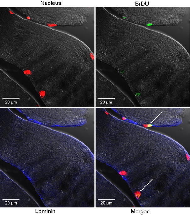 Newly formed muscle fiber with BrDU positive nuclei. Five weeks after the trauma, clear laminin staining and completely regenerated muscular structure can be investigated. Arrows show BrDU positive nuclei incorporated into the myofiber