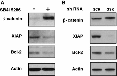 GSK-3β inhibition alters the expression of anti-apoptotic proteins. GSK-3β was inhibited in Neuro-2A cells either by treating with a small molecule inhibitor of GSK-3β SB415286 (25 μM) or with a specific shRNA for GSK-3β. Western blot analysis was performed to determine the cellular protein levels of β-catenin, XAIP and Bcl-2. Actin was used to assess protein loading in each lane
