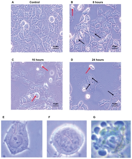 Morphological characteristics of Panc-1 cells which were treated with 200 μl of Ni NWs suspension for 0 (control), 8, 16, and 24 hours and visualized with phase contrast microscope (magnification 40×). Increasing detachment of cells from the well surface is seen with increasing exposure time. ( A ) Adherent cells without Ni NWs (control); ( B ) adherent (black arrows) and suspended (red arrows) cells with internalized Ni NWs after 8 hours; ( C ) adherent and a greater number of suspended cells with internalized Ni NWs after 16 hours; ( D ) Adherent and suspended cells with internalized Ni NWs after 24 hours. ( E – G ) represent more specific cellular morphological changes. ( E ) Uptake of Ni NWs by endocytosis to the cell cytoplasm; ( F ) internalization of Ni NWs to the cell nucleus followed by cell shrinkage, round shaped, and initiation of membrane blebbing; ( G ) apoptotic body formation through final membrane blebbing.