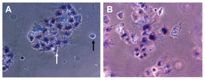 Qualitative morphological study of apoptosis by MTT assay. Phase contrast pictures of formazon in Ni NWs treated Panc-1 cells where ( A ) control, ie, untreated cells and ( B ) treated cells. Viable cells exhibited a deep purple cell nucleus with rod shaped formazon whereas apoptotic cells lacked formazon growth because of the lack of mitochondrial reductase and thus did not change in color. Dead cells are indicated by black arrows and live cells are identified by white arrows.