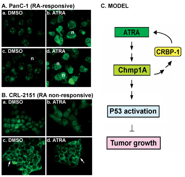 Chmp1A was translocated to the nucleus in ATRA responsive cells but to the membrane in ATRA resistant cells upon ATRA treatment (A and B), and Model (C) . (A) In the presence of DMSO, Chmp1A expression was modestly detected both in the nucleus and cytoplasm in PanC-1 cells (a, c). However, Chmp1A protein expression became robust in the presence of ATRA, especially in the nucleus (n in c, d). (a, b) and (c, d) is one and two days after vehicle or ATRA treatment, respectively. (B) Chmp1A was initially distributed ubiquitously in CRL-2151 cells in the presence of DMSO or ATRA (a, b). From Day 3 on, however, Chmp1A protein was mainly detected and remained at the membrane (arrows in c, d) in both DMSO and ATRA treated cells. (a, b) is for Day 2 and (c, d) is for Day 3 after DMSO and ATRA treatment, respectively. (C) Model: Chmp1A mediates growth inhibition of ATRA signaling. Chmp1A positively regulates the expression of CRBP-1. In turn, CRBP-1 controls the activity of ATRA via regulating the storage and metabolism of retinol A. ATRA treatment produces an increase in the expression level of Chmp1A in the nucleus, which leads to the accumulation of total and 'active' P53 resulting in a decrease in cell proliferation.