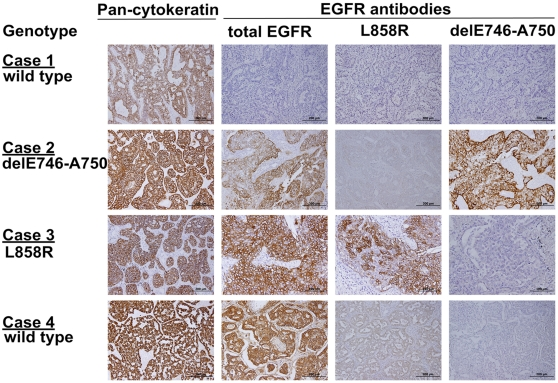 Immunohistochemical stain of lung adenocarcinoma. Control pan-cytokeratin antibody stains all tissue samples regardless of <t>EGFR</t> mutation status. Case 1 . A sample with wild-type EGFR was not stained with total EGFR, L858R and delE746-A750 antibodies. Case 2 . A sample with delE746-A750 was stained with both total EGFR and delE746-A750 specific antibody. Case 3. A sample with L858R was stained with both total EGFR and L858R specific antibody. Case 4. A sample with wild-type EGFR was stained with moderate intensity of total EGFR and mild intensity of L858R specific antibody.