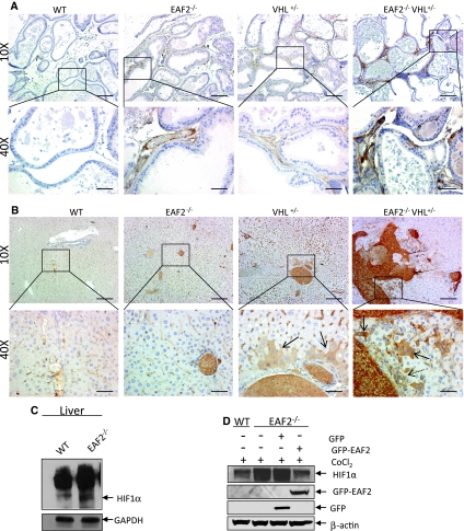 Expression of HIF1α in prostate and liver. a HIF1α immunostaining of vessels in transverse sections of prostate ventral lobes from wild-type control (WT), EAF2 −/− , VHL +/− and EAF2 −/− VHL +/− mice at age 20–24 mos. b HIF1α immunostaining of vessels in transverse sections of liver from wild-type control (WT), EAF2 −/− , VHL +/− and EAF2 −/− VHL +/− mice at age 20–24 mos. VHL +/− mice displayed cytoplasmic staining of hepatocytes and sinusoidal lining cells proximal to portal areas ( black arrow ). EAF2 −/− VHL +/− mice displayed cytoplasmic staining of hepatocytes and sinusoidal lining cells ( black arrows ) in areas of increased oval cell proliferation ( dashed arrow ). c Western blot analysis of HIF1α expression in liver extracts of wild-type or EAF2 −/− mice at age 12 mos. Blots were reprobed with GAPDH antibody to confirm equal protein loading. d Modulation of HIF1α expression by EAF2 in MEF cells. EAF2 −/− MEF cells transfected with GFP-EAF2 had reduced HIF1α expression. Blots were reprobed with β-actin antibody to confirm equal protein loading. Western blot images are representative of at least 3 experiments