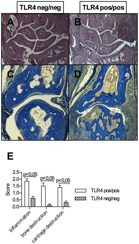 Histological joint destruction in paw sections. Synovial inflammation is suppressed in CIA in DBA1J TLR4 negative mice (A, C) compared to wt mice (B, D). Representative front paw sections showing wrist and carpal joints and stained in H E, original magnification ×10 are shown in (A) and (B) and interphalangeal joints with extensive pannus formation and bone destruction stained with Nuclear Fast Rubine-Aniline Blue-Orange G in (C) and (D), original magnification ×100. Histological joint scores reflecting significantly suppressed inflammation and cartilage and bone destruction in TLR4 defective mice are shown in (E).