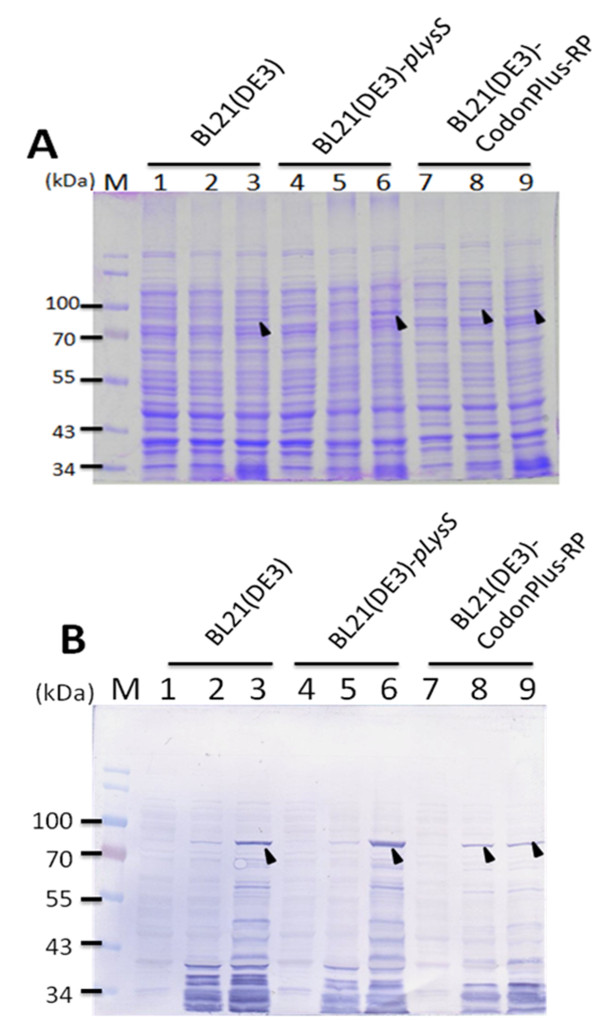 Expression of recombinant GST-VP1 protein in three different E. coli strains . The GST-VP1 protein expression in three E. coli strains, BL21(DE3), BL21-CodonPlus(DE3)-RP and BL21(DE3)-pLysS all containing pGEX-4T-1-VP1 was examined. The GST-VP1 protein was examined and detected using SDS-PAGE (A) and Western-blotting (B). Anti-GST tag monoclonal antibody was used to recognize the VP1 protein. Lane M, pre-stained protein marker; lane 1, 4 and 7, before IPTG induction; lane 2, 5 and 8, after IPTG induction for 1 hrs cultivation; lane 3, 6 and 9, after IPTG induction for 4 h cultivation. The solid triangle pinpoints the expressed VP1 protein.