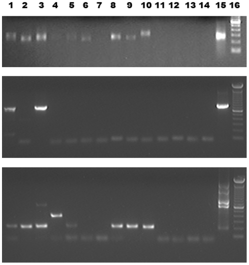 Amplification of contaminating DNA from empty columns of the QiaAmp FFPE Tissue Kit. Lanes 1–10, naïve DNA extraction columns; lanes 11–14, PCR water controls; lane 15, positive control; upper panel, McCoy cellular DNA; middle and lower panel, XMRV VP62 infectious clone; lane 16, 100 bp DNA ladder (Invitrogen, Paisley, UK). Upper panel, detection of contaminating sequences using IAP-specific primers IAP for and IAP rev. All columns apart from column no 7 produce amplicons. Size differences reflect the fact that IAP sequences form a class of slightly different retrotransposons. Middle panel, PCR products using primers XTP1 and MLV reverse outer under relaxed annealing conditions. Lower panel, multiplex PCR using the four primers XMRV-R, XMRV Forward outer, XMRV Reverse outer and 1154R under less stringent annealing conditions.