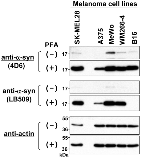 Immunoblotting of endogenous α-syn in various melanoma cell lines. Total cell lysates were prepared from 4 human melanoma cell lines (SK-MEL28, A375, MeWo, and WM266-4) and 1 mouse melanoma cell line (B16). The protein samples (∼10 µg) were loaded onto a 15% SDS-polyacrylamide gel and electrophoresed, followed by Western transfer onto a PVDF membrane. The membrane was then fixed with or without 0.4% PFA for 30 min. Afterwards, the membrane was blocked and incubated with a primary antibody (anti-α-syn antibody 4D6, anti-human α-syn antibody LB509, or anti-actin antibody) and a secondary antibody conjugated with horseradish peroxidase. Protein bands on the membrane were detected by ECL-Plus detection system. Symbols (+) and (−) indicate presence and absence of membrane fixation with 0.4% PFA, respectively. Molecular size markers are shown in kilodaltons (kDa).