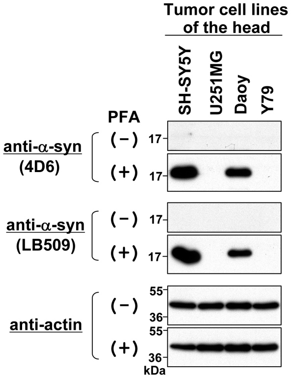 Immunoblotting of endogenous α-syn in tumor cell lines of the head. Total cell lysates were prepared from human retinoblastoma cell line Y79 and 3 human brain tumor cell lines: SH-SY5Y (neuroblastoma), U251MG (glioblastoma), and Daoy (medulloblastoma). The protein samples (∼10 µg) were loaded onto a 15% SDS-polyacrylamide gel and electrophoresed, followed by Western transfer onto a PVDF membrane. The membrane was then fixed with or without 0.4% PFA for 30 min. Afterwards, the membrane was blocked and incubated with a primary antibody (anti-α-syn antibody 4D6, anti-α-syn antibody LB509, or anti-actin antibody) and a secondary antibody conjugated with horseradish peroxidase. Protein bands on the membrane were detected by ECL-Plus detection system. Symbols (+) and (−) indicate presence and absence of membrane fixation with 0.4% PFA, respectively. Molecular size markers are shown in kilodaltons (kDa).