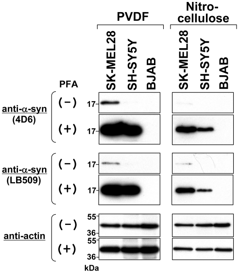 Comparison of nitrocellulose and PVDF membranes in immunoblotting of α-syn. Immunoblotting was performed using a PVDF membrane (left panels) and a nitrocellulose membrane (right panels). Briefly, total cell lysates were prepared from SK-MEL28 (positive control), SH-SY5Y (positive control), and BJAB (negative control). The protein samples (∼10 µg) were loaded onto a 15% SDS-polyacrylamide gel and electrophoresed, followed by Western transfer onto a PVDF or nitrocellulose membrane. The membrane was then fixed with or without 0.4% PFA for 30 min. Afterwards, the membrane was blocked and incubated with a primary antibody (anti-α-syn 4D6, LB509, or anti-actin) and a secondary antibody conjugated with horseradish peroxidase. Protein bands on the membrane were detected by ECL-Plus detection system. Symbols (+) and (−) indicate presence and absence of membrane fixation with 0.4% PFA, respectively. Molecular size markers are shown in kilodaltons (kDa).