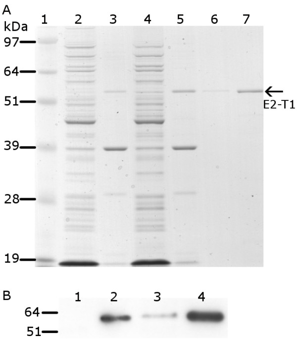 Protein analysis of pET-SUMO-E2-T1 expression in E. coli <t>BL21</t> (DE3) . (A) Protein from soluble and insoluble fractions separated by electrophoresis on 10% Bis-Tris gel and stained with Coomassie blue. Lane 1, SeeBlue ® Plus2 MW standard; lane 2, soluble protein fraction at 0 hours; lane 3, insoluble protein fraction at 0 hours; lane 4, soluble protein fraction 2 hours post IPTG induction; lane 5, insoluble protein fraction 2 hours IPTG post induction; lane 6, E2-T1 purified from IB (0.4 μL); lane 7, E2-T1 purified from IB (2 μL). (B) Western blot image of E2-T1 protein expressed in E. coli BL21 (DE3). Equivalent amounts of protein from the soluble and insoluble fractions were transferred to Hybond C and incubated with an anti-his antibody and detected by ECL. Lane 1, soluble protein fraction 0 hours; lane 2, insoluble protein fraction 0 hours; lane 3, soluble protein fraction 2 hours post IPTG induction; lane 4, insoluble protein fraction 2 hours post IPTG induction.