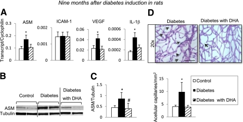 Effect of DHA-supplemented diet on long-term diabetes-induced degenerative changes in rat retina. Retinas isolated 9 months after induction of diabetes were analyzed by quantitative PCR and immunobloting for inflammatory/angiogenic molecule expression. Quantitative PCR analysis of <t>ASM,</t> ICAM-1, <t>VEGF,</t> and IL-1β ( A ) of retinas isolated from rats subjected to a standard diet (control, white bar ; diabetic, black bar ) or a DHA-enriched diet (diabetic, striped bar) is shown. The results are means ± SE from one set of animals, with five to eight animals in each group. * P