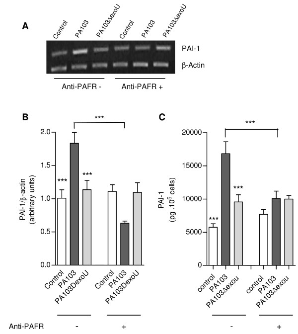Effects of anti-PAFR antibody on PAI-1 expression by PA103-infected cells . In (A), a representative agarose gel shows the expression of PAI-1 and β-actin mRNA transcripts in control and infected A549 cells pretreated or not with the anti-PAFR antibody, assessed by semiquantitative RT-PCR. In (B), mean ± SD values of the ratio of PAI-1 to β-actin transcript densities obtained in 2 RT-PCR assays carried out in duplicate. In (C), mean values ± SE of PAI-1 concentration in cell supernatants from control and infected cultures, pretreated (anti-PAFR +) or not (anti-PAFR -) with the anti-PAFR antibody, obtained in three different assays carried out in quintuplicate. *** p