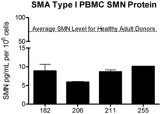 Detection of SMN Protein in SMNA Type 1 <t>PBMCs.</t> SMA Type I patient samples (N = 4) were tested in the SMN ELISA at dilutions of 1∶4 with 1.25×10 6 and 2.5×10 6 PBMCs. SMN protein signal was detected in all samples, with an average of 8.32 pg SMN protein per 10 6 cells. Based on the average of 70.2 pg SMN protein per 10 6 cells calculated for adult normal donor PBMCs, the amount of SMN protein in PBMCs of Type I SMA patients in this patient cohort is 88% less than normal. Error bars represent standard deviations.