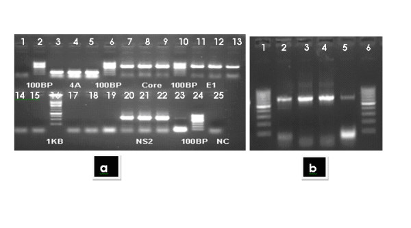 a) Showing the amplified genes of Core (573), Envelope 1(576), Non-structural 2 (NS2, 642 bp) and Non Structural 4a (NS4A, 168 bp), b) lanes 2-5 (left to right) showing the complete amplified region of 783 bp of Non Structural 4b gene . From the HCV positive serum with 3a genotype, RNA was extracted and individual gene was reverse transcribed using M-MLV. HCV reference sequence of NZL1 # D17763 was used for primer designing on Primer 3 software, restriction sites and kozak sequences were added after restriction analysis on web cutter and neb-cutter primers sequences. Each entire gene was amplified individually. Amplified genes with restriction sites were then cloned in mammalian expression vector PcDNA3.1+ .