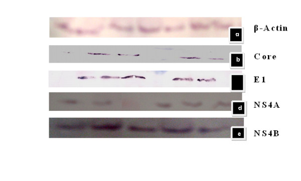 (Top to Bottom) a: blot result of positive control B-Actin; b, c, d, and e are blot results of Core, E1, NS4A, NS4B respectively developed by AP conjugated Anti mouse with NBT/BCIP substrate (sigma) . Cells were lysed and protein was extracted after 72 hrs after transfection for single stable clone after 3 weeks About 80-100 μg of total protein were loaded into each well on 12.5% SDS-PAGE and electrophoretically blotted onto a Hybond-C extra nitrocellulose membrane semi-dry blotting apparatus. The membrane was blocked for 1 hour with a 5% milk solution in Phosphate Buffered Saline-0.05% Tween <t>(PBS-T),</t> washed three times with 50 ml of PBS-T. A mixture of primary antibodies for structural genes core (sc-57800), E1 (sc-65459) and non structural gene NS4A (sc-52415), NS4B (sc-65457) was added at a concentration of 1:500-1:800 in 5 ml of PBS-T. After incubating at room temperature for 1 hour, the membrane was washed 3 times with PBS-T. A secondary antibody, rabbit anti-mouse IgG, conjugated to alkaline phosphatase was added at a dilution of 1/1000 in PBS-T, incubated at room temperature for one hour. The membrane was washed for three times with PBS-T. Substrate tablet (NBT/BCIP) was dissolved in 1XPBS and blot was incubated for 15-30 min .
