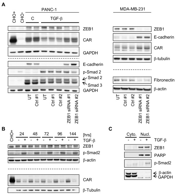 ZEB1 promotes EMT . A-C . Immunoblots. PANC-1 cells were pre-treated with TGF-β1 for two days and then transfected twice (day 0 and day 2) with ZEB1 siRNAs in the continued presence of TGF-β1. Four days after the initial transfection, cells were harvested. A . By up-regulating epithelial proteins such as E-cadherin and CAR, knockdown of ZEB1 antagonizes <t>TGF-β-induced</t> EMT in PANC-1 cells. Similarly, silencing of ZEB1 expression in MDA-MB-231 cells up-regulates E-cadherin and CAR, and down-regulates the mesenchymal marker fibronectin. B . PANC-1 cells were treated with TGF-β1, and harvested at the indicated time-points for analysis of the total protein fractions. C . PANC-1 cells were treated with TGF-β1 and subjected to cell fractionation. Abbreviations: C, TGF-β1 solvent control [4 mM HCl/0.1% (v/w) BSA]; UT, untransfected; Ctrl #1, siControl ON-TARGETplus Non-targeting siRNA #1 (Dharmacon); Ctrl #2, firefly luciferase-targeting siRNA; ZEB1 siRNA #1/#2, ZEB1-targeting siRNAs. Ctrl #2 and ZEB1 siRNA sequences are provided in Additional file 1 (Table S3). Chinese Hamster Ovary cells stably expressing human CAR (CHO+), or vector (CHO-) [ 9 ]. Loading controls are shown as β-actin, β-tubulin, GAPDH and <t>PARP</t> signals, with GAPDH as a cytoplasmic, and PARP as a nuclear marker.
