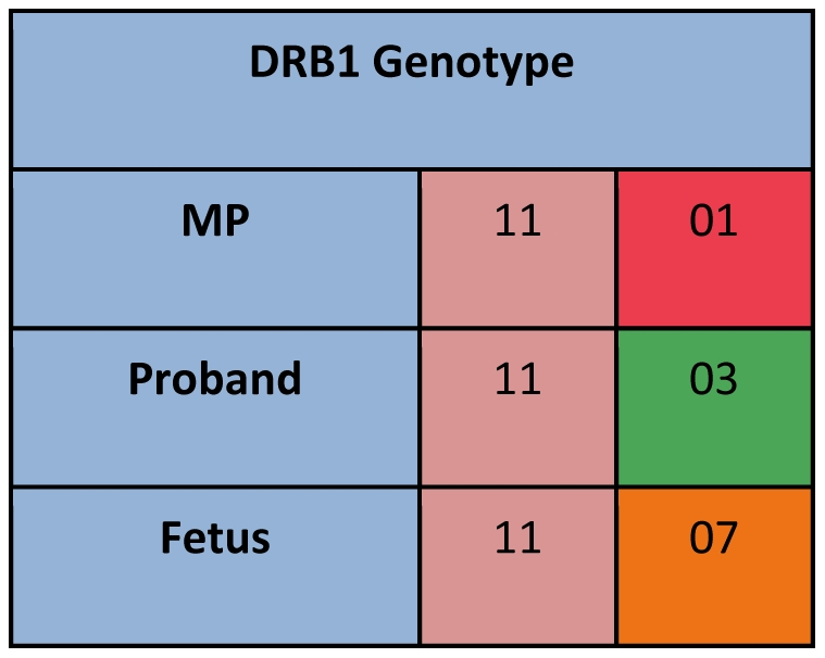 Schematic representation of strategy used to identify microchimerism. In this example, HLA genotyping for DRB1 is shown for a proband, her mother (MP), and her fetus. Once a polymorphism unique to the MP is identified (DRB1*01 in this example), polymorphism-specific quantitative PCR can then be used to quantify MP microchimerism in DNA extracted from proband PBMC.