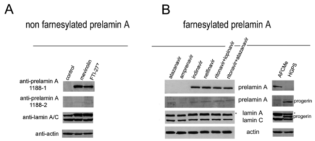 Prelamin A Western blot analysis in control and HGPS skin fibroblasts. Western blot analysis of human fibroblast lysates performed with antibody 1188-1, 1188-2 or anti-lamin A/C antibody is shown. (A) Analysis of cells forced to accumulate non-farnesylated prelamin A. Cellular lysates have been obtained from control untreated fibroblasts (control), or from fibroblasts treated with FTI-277 or mevinolin to accumulate non-farnesylated prelamin A. (B) Analysis of cells accumulating farnesylated prelamin A. Cells were treated with the HIV protease inhibitors atazanavir, amprenavir, indinavir, nelfinavir, ritonavir+lopinavir and ritonavir+atazanavir (left panels) to accumulate farnesylated prelamin A. Analysis of lysates from AFCMe -treated control fibroblasts and untreated HGPS fibroblasts, known to accumulate farnesylated prelamin A, is shown in the right panels. Atazanavir and amprenavir did not affect prelamin A processing and are used as negative controls. Actin is labelled as a loading control. Asterisks indicate the shift of the prelamin A band detected by anti-lamin A/C antibody.