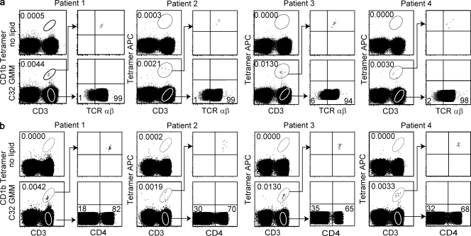 CD1b-restricted T cell populations express the αβ TCR and CD4. PBMCs from four subjects infected with Mycobacterium tuberculosis were subjected to multicolor FACS analysis. Cells were stained with CD3, violet viability dye, CD14 and CD19-PercP-Cy5.5, loaded CD1b tetramers, and anti–TCR-αβ (a) and CD4 (b).