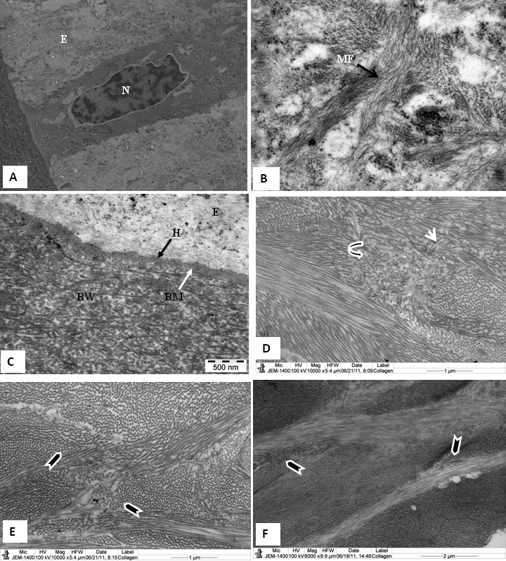 Electron micrograph of tree shrew and human cornea fixed in 2.5% glutaraldehyde containing <t>cuprolinic</t> blue and embedded in <t>spurr</t> resin. A : Basal epithelial cells are columnar and contain large nuclei. B : Prominent cytoplasmic filaments in basal epithelial cells. C : Basal epithelial cells attached by hemidesmosomes to a basement membrane followed by a Bowman's layer consisting of dense, randomly arranged collagen fibrils. D : Non linear, random distribution of collagen fibrils (curved arrowhead) present in the anterior stroma just below the Bowman's layer. Some of the collagen run across the longitudinally-running collagen fibrils (arrowhead). E : Lamellae are interlacing (arrowhead) in the anterior stroma of the tree shrew. F : Lamellae are interlacing (arrowhead) in the anterior stroma of the normal human cornea. B=Bowman's layer, BM=Basement membrane, CF=Collagen fibrils, E=Epithelium, H=Hemidesmosomes, and MF=Cytoplasmic filaments.