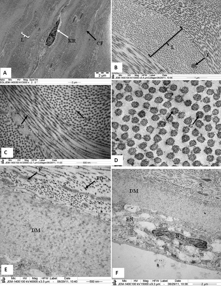 Electron micrograph of tree shrew cornea fixed in 2.5% glutaraldehyde containing cuprolinic blue and embedded in spurr resin. A : In the middle stroma, parallel running lamellae containing a keratocyte. B and C : Lamella containing orderly, packed collagen fibrils and proteoglycans. D : In cross-section, collagen fibrils exhibiting tiny particles, some of which are of high electron density. E : Pre-Descemet's stroma containing very fine fibrils and large PGs around the collagen fibrils. Fibrillar structures are present throughout the Descemet's membrane. F : Part of the posterior cornea, showing a banded Descemet's membrane and an endothelium containing a nucleus; also a prominent endoplasmic reticulum. CF=Collagen fibrils, DM=Descemet's membrane, EN=endothelium, F=Fine fibril, G=tiny particles, KR=Keratocytes, L=Lamella, PG=Proteoglycan, and S=Stroma.