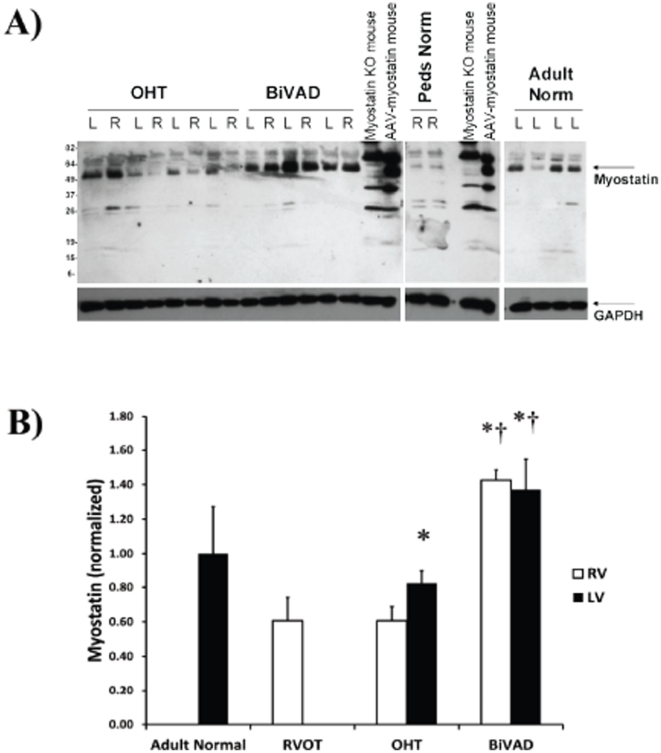 Myostatin Expression. A.) Representative Western blot for the myostatin peptide (∼50 kDa) in Adult Normal (n = 5), pediatric right ventricular outflow tract (RVOT) (n = 3), pediatric orthotopic heart transplant (OHT) (n = 7 paired LV and RV), and pediatric biventricular assist device (BiVAD) myocardial tissue samples (n = 3 paired LV and RV). B.) No significant differences were found between Adult Normal and RVOT, while LV-OHT were significantly higher than RV-OHT samples ( p