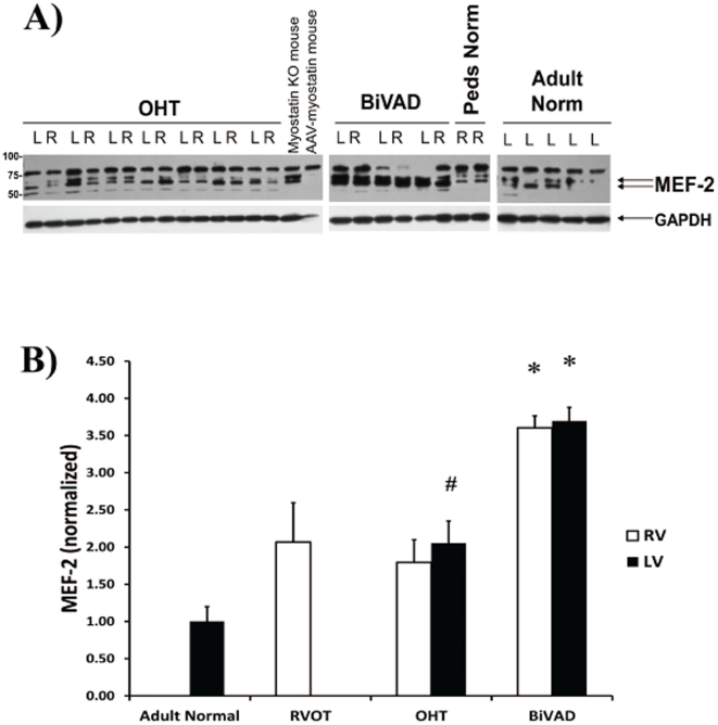 MEF-2 Expression. A.) Representative Western blot for MEF-2, a transcriptional factor for myostatin, in Adult Normal (n = 5), pediatric right ventricular outflow tract (RVOT) (n = 3), pediatric orthotopic heart transplant (OHT) (n = 7 paired LV and RV), and pediatric biventricular assist device (BiVAD) myocardial tissue samples (n = 3 paired LV and RV). B.) MEF-2 was significantly increased in LV-OHT compared to Adult Normal control (# p