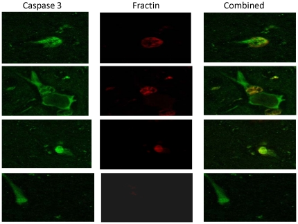 Double-labeling detected by immunofluorescence revealed colocalization of fractin and active caspase 3 in several cells in the frontal cortex.
