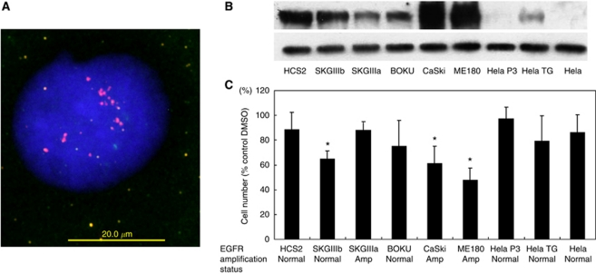 Biofunctional effects of EGFR inactivation on different cervical cancer cell lines. ( A ) Dual-colour fluorescence in situ <t>hybridisation</t> <t>(FISH)-validated</t> amplification of the EGFR gene in cervical cancer cell lines. The FISH analysis showing a homogeneously stained region in CaSki cells with gene amplification. ( B ) Western blot indicates the protein level of EGFR in each cell line. ( C ) Each cell line was treated with 10 μ mol l –1 AG1478 to inhibit EGFR function, and cell viability was measured with an MTT assay 98 h later. An equal amount of DMSO was used as a control. * P