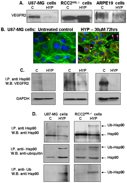Effects of hypericin on complex formations between <t>VEGFR2,</t> Hsp90 and on HOP-hsp70 intermediate complexes. [A]. Western blot analyses of VEGFR2 protein levels in cytosolic extracts from untreated control cells (C), or cells treated with 30 µM hypericin for 72 hrs (HYP). [B]. Staining of U87-MG cells with Phalloidin-FITC. (1) Untreated cells and (2) cells treated with hypericin 30 µM for 72 hrs. Orange arrows show F-actin filaments; yellow arrows depict collapsed actin globules following exposure to hypericin. [C]. VEGFR2-hsp90 complex formation following treatment with hypericin 30 µM for 72 hrs. Results of immunoprecipitation with anti-Hsp90 antibody and development of Western blots with anti-VEGFR2 antibody. Hypericin diminished VEGFR2-Hsp90 complex formation. [D]. Induction of forced hsp90 poly-ubiquitination by hypericin (30 µM for 72 hrs) in human cancerous cell lines. Top panel – immunoprecipitation with anti-hsp90 and Western blot with anti-hsp90 antibody (control); middle panel - immunoprecipitation with anti-hsp90 and Western blot with anti-ubiquitin, and lower panel immunoprecipitation with anti-ubiquitin and Western blot with anti-hsp90. (I.P – immunoprecipitation; W.B. – Western blots).
