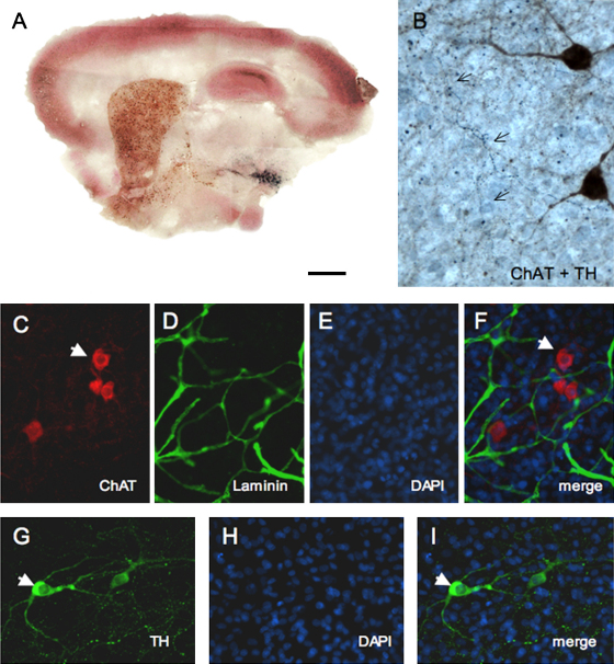 Co-localization of dopaminergic and cholinergic neurons and capillaries in organotypic sagittal vibrosections using chromogenic substrate (A and B) or fluorescence labelling (C–I). (A) shows a triple immunohistochemical staining for cholinergic neurons (DAB-nickel, black), dopaminergic neurons (SG, grey) and calbindin (VIP, violet). (B) shows TH+ nerve fibers (arrows, blue) crossing ChAT+ neurons (brown) in the basal nucleus of Meynert. (C)–(F) show co-localization of cholinergic ChAT+ neurons (arrow, C) with laminin+ capillaries (D). (G)–(I) show cytoplasmic staining of TH+ dopaminergic neurons (arrow, G). Nuclei were stained with DAPI (E, H). (F) and (I) show the merged pictures. Scale bar in (A) = 1200 μm, 30 μm (B) and 60 μm (C–I).