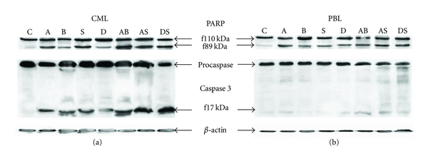 Western blots showing PARP fragmentation and caspase 3 activation during 24 h treatment of CML cells (a) or PBL (b). Cells were treated by actinomycin D (A), sodium butyrate (B), SAHA (S), decitabine (D), or their combination (AB, AS, DS). Symbol C denotes untreated cells. β -actin expression is showed as a loading control.
