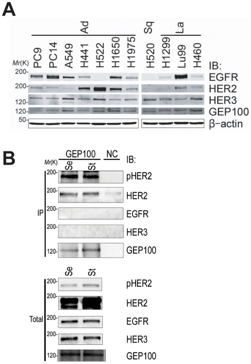 Endogenous binding of GEP100 with Her2 overexpressed in H522 lung adenocarcinoma cells. ( A ) Total lysates (30 µg) of 11 non-small cell lung cancer cell lines were immunoblotted with antibodies as indicated. ( B ) Co-precipitation of Her2 with GEP100 from H522 cell lysates (250 µg), analysed by anti-GEP100 immunoprecipitation, and the immunoblot for anti-GEP100, anti-Her2 (HER2), and anti-phospho Her2 (pHER2). Immunoblots using anti-EGFR (EGFR) and anti-Her3 (HER3) antibodies were also included. Cells were cultured in the presence of serum (Se), or starved for serum for 24 h (St), prior to lysis. Total, 20 µg of total lysates. Immunoprecipitation of cells using non-immune serum was used as a negative control (NC).