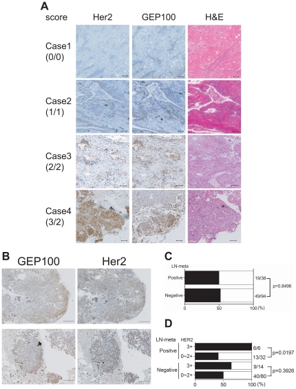 Immunohistochemistry of <t>Her2</t> and GEP100 in adenocarcinoma lung tissue specimens. ( A ) Her2 and GEP100 were each stained in brown in sequential sections. Case 1, Her2 and GEP100 double negative; Case 2, Her2 score 1+ and GEP100 score 1+; Case 3, Her2 score 2+ and GEP100 score 2+; Case 4, Her2 score 3+ GEP100 and GEP100 score 2+. All sections were counterstained with hematoxylin and eosin (H E) and representative figures are shown. Scale bars, 100 µm. ( B ) Representative figures of the peripheral expression of GEP100. Scale bars, 500 µm. ( C ) No correlation between strong expression of GEP100 (score 2+) per se with node-metastases. ( D ) A statistical correlation between double strong positive signal of GEP100 (score 2+) and Her2 (score 3+), and node-metastases. In C and D , solid bars mean GEP100 positive rate for strong expression (score 2+).